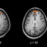 schizophrenia 630 px wiki